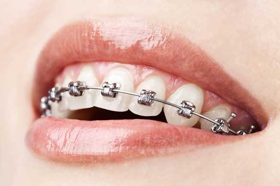 Braces attached to the teeth