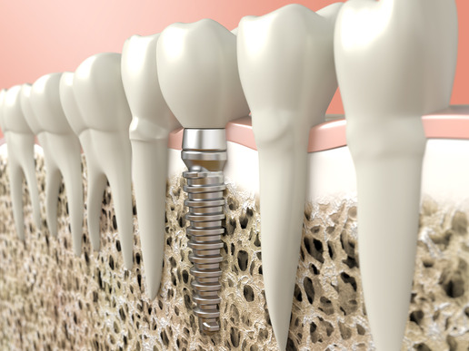 high resolution 3d rendering of a dental implant