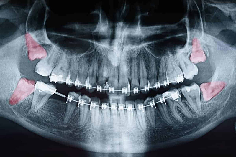 Wisdom Teeth Removal Frisco Tx Wisdom Tooth Impacted Tooth